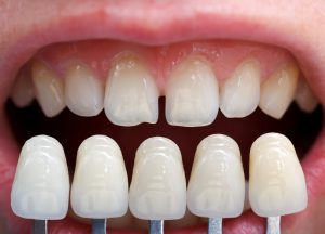 Perry Frydman DDS porcelain veneer solution