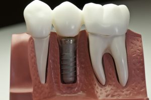 Perry Frydman DDS Implant Solutions