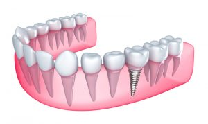 Perry Frydman DDS dental implants